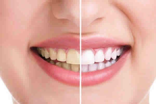 Quais as melhorias na saúde da sua boca, com o plano dental?